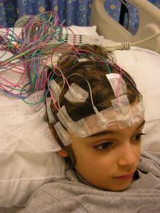 Epilepsi 30 Elektrot