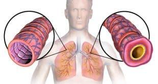 Bu Doğal Tedaviler Sayesinde Astım Hastalık Olmaktan Çıkıyor