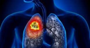 Akciğer Kanserinin Sinsi Belirtileri Bilinmesi Gerekenler