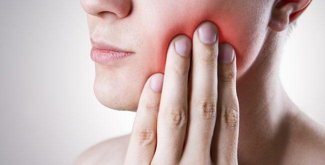 Diş apsesi için doğal antibiyotik önerileri