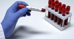 1 haftalık gebelikte beta HCG değerleri