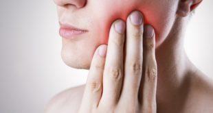 Diş iltihabı nasıl geçer? Diş eti şişmesine ne iyi gelir?