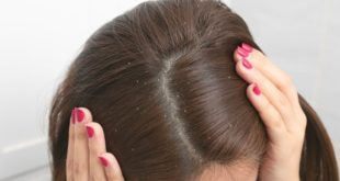 Saçtaki kepek nasıl önlenir?